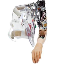 Prosthetic-Arm-Electronics-Omnetics.png